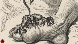 Онанизм, подагра, меланхолия, ностальгия: История блезней